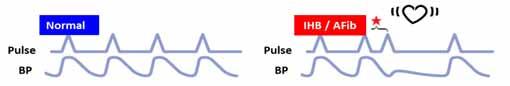 Πιεσόμετρα Μπράτσου με ανίχνευση κολπικής μαρμαρυγής (AFib)